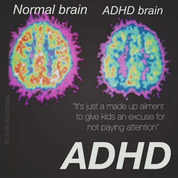 adhd test dig selv